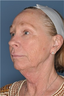 Facelift Before Photo by Nathan Patterson, MD; Pensacola, FL - Case 35322
