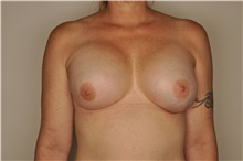 Breast Reconstruction After Photo by Nathan Patterson, MD; Pensacola, FL - Case 35326