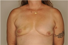 Breast Reconstruction Before Photo by Nathan Patterson, MD; Pensacola, FL - Case 35326