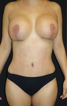 Tummy Tuck After Photo by Jeff Angobaldo, MD; Plano, TX - Case 35210