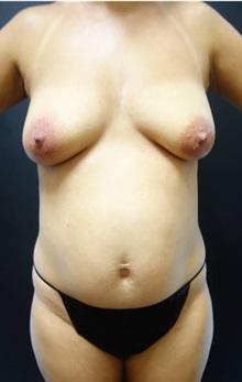 Tummy Tuck Before Photo by Jeff Angobaldo, MD; Plano, TX - Case 35210