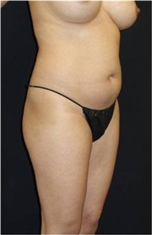 Liposuction Before Photo by Jeff Angobaldo, MD; Plano, TX - Case 35241