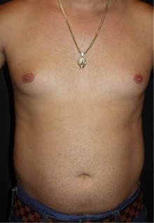 Liposuction Before and After Photos | American Society of