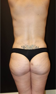 Liposuction After Photo by Jeff Angobaldo, MD; Plano, TX - Case 35254