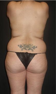Liposuction Before Photo by Jeff Angobaldo, MD; Plano, TX - Case 35254