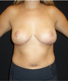 Breast Reduction After Photo by Jeff Angobaldo, MD; Plano, TX - Case 35260