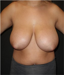 Breast Reduction Before Photo by Jeff Angobaldo, MD; Plano, TX - Case 35260
