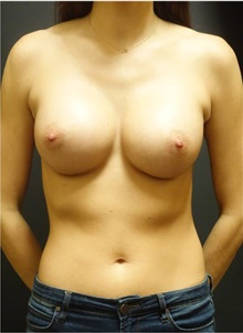 Breast Augmentation After Photo by Jeff Angobaldo, MD; Plano, TX - Case 35285