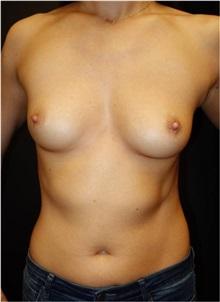 Breast Augmentation Before Photo by Jeff Angobaldo, MD; Plano, TX - Case 35285
