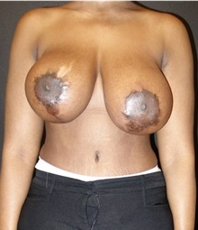 Breast Lift Before Photo by Jeff Angobaldo, MD; Plano, TX - Case 35495