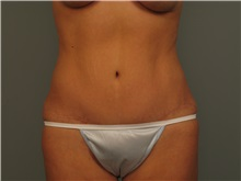 Tummy Tuck After Photo by Bahair Ghazi, MD; Atlanta, GA - Case 28095