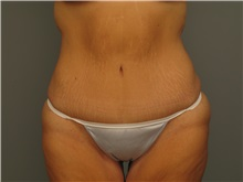 Body Contouring After Photo by Bahair Ghazi, MD; Atlanta, GA - Case 28096