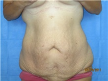 Body Contouring Before Photo by Bahair Ghazi, MD; Atlanta, GA - Case 28096