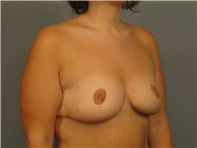 Breast Lift After Photo by Bahair Ghazi, MD; Atlanta, GA - Case 28097