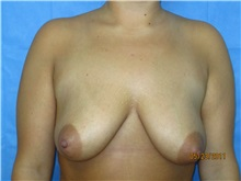 Breast Lift Before Photo by Bahair Ghazi, MD; Atlanta, GA - Case 28098