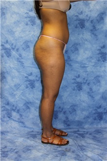 Liposuction Before Photo by Wendell Perry, MD; Hollywood, FL - Case 27732