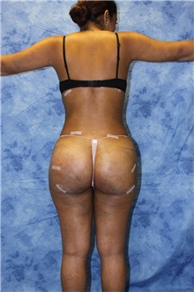 Liposuction After Photo by Wendell Perry, MD; Hollywood, FL - Case 27732