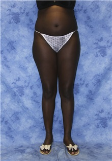 Liposuction Before Photo by Wendell Perry, MD; Hollywood, FL - Case 27737