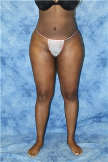 Liposuction After Photo by Wendell Perry, MD; Hollywood, FL - Case 27749