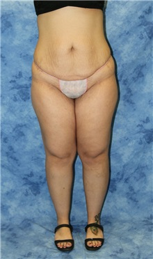 Liposuction Before Photo by Wendell Perry, MD; Hollywood, FL - Case 27750
