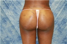 Liposuction After Photo by Wendell Perry, MD; Hollywood, FL - Case 27766