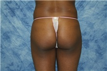 Liposuction Before Photo by Wendell Perry, MD; Hollywood, FL - Case 27766