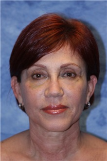 Dermal Fillers After Photo by Wendell Perry, MD; Hollywood, FL - Case 27776