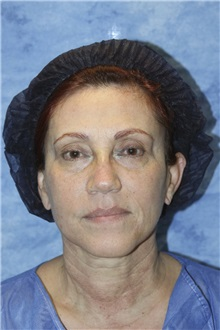 Dermal Fillers Before Photo by Wendell Perry, MD; Hollywood, FL - Case 27776