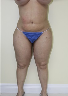 Liposuction After Photo by Wendell Perry, MD; Hollywood, FL - Case 27781