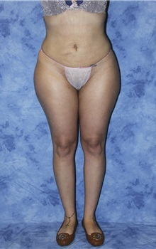 Liposuction After Photo by Wendell Perry, MD; Hollywood, FL - Case 27804