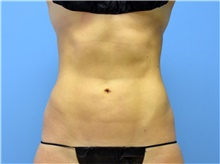 Liposuction After Photo by John Connors, III, MD; Atlanta, GA - Case 39603
