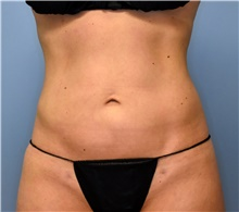 Liposuction After Photo by John Connors, III, MD; Atlanta, GA - Case 39605
