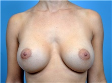 Breast Augmentation After Photo by John Connors, III, MD; Atlanta, GA - Case 39702