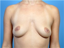 Breast Augmentation Before Photo by John Connors, III, MD; Atlanta, GA - Case 39702