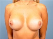 Breast Augmentation After Photo by John Connors, III, MD; Atlanta, GA - Case 39703