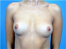 Breast Augmentation Before Photo by John Connors, III, MD; Atlanta, GA - Case 39703