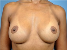 Breast Augmentation After Photo by John Connors, III, MD; Atlanta, GA - Case 39704