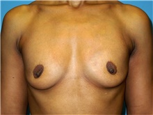 Breast Augmentation Before Photo by John Connors, III, MD; Atlanta, GA - Case 39704