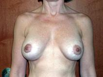 Breast Augmentation After Photo by Kenneth Dembny, MD; Waukesha, WI - Case 6679