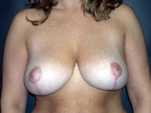 Breast Reduction After Photo by Kenneth Dembny, MD; Waukesha, WI - Case 6779
