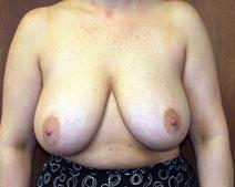 Breast Reduction Before Photo by Kenneth Dembny, MD; Waukesha, WI - Case 6779