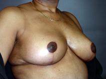 Breast Reduction After Photo by Kenneth Dembny, MD; Waukesha, WI - Case 6816