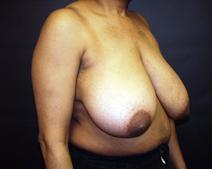 Breast Reduction Before Photo by Kenneth Dembny, MD; Waukesha, WI - Case 6816