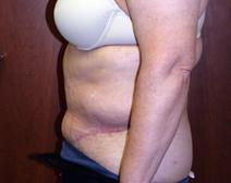 Tummy Tuck After Photo by Kenneth Dembny, MD; Waukesha, WI - Case 6848