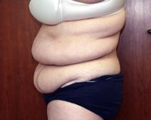 Tummy Tuck Before Photo by Kenneth Dembny, MD; Waukesha, WI - Case 6848