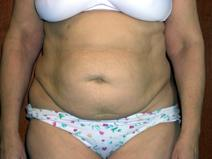 Tummy Tuck Before Photo by Kenneth Dembny, MD; Waukesha, WI - Case 6869