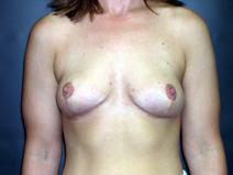 Breast Reduction After Photo by Kenneth Dembny, MD; Waukesha, WI - Case 6909