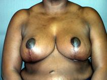 Breast Reduction After Photo by Kenneth Dembny, MD; Waukesha, WI - Case 6910