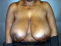 Breast Reduction Before Photo by Kenneth Dembny, MD; Waukesha, WI - Case 6910