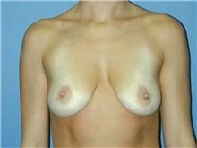 Breast Lift Before Photo by Jeffrey Scott, MD; Bradenton, FL - Case 26039